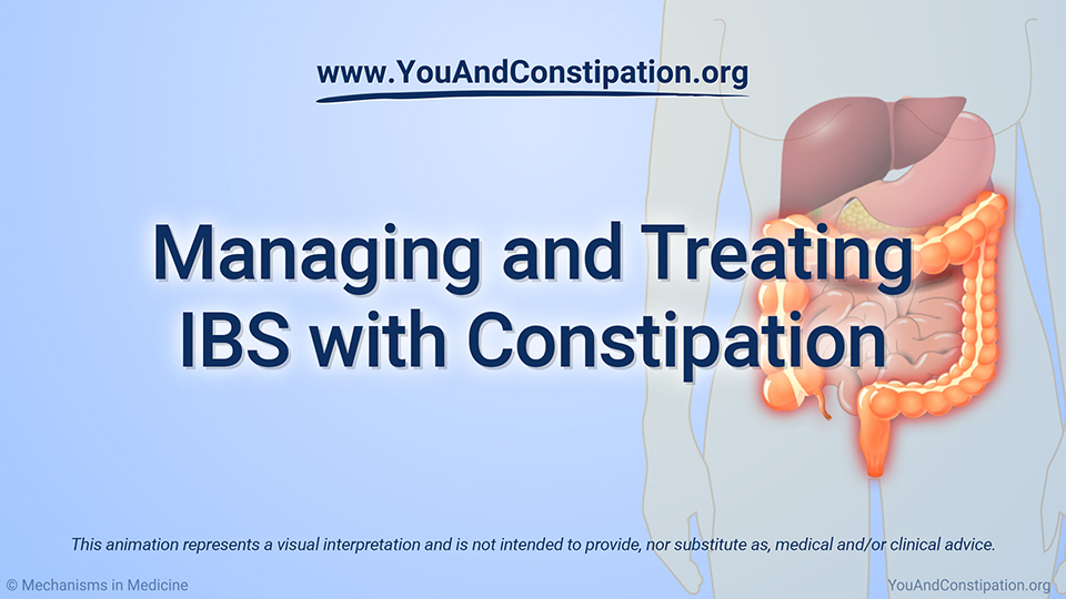 Animation - Managing and Treating IBS-C