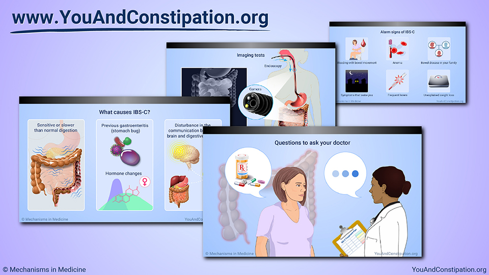 Slide Show - Diagnosing IBS-C