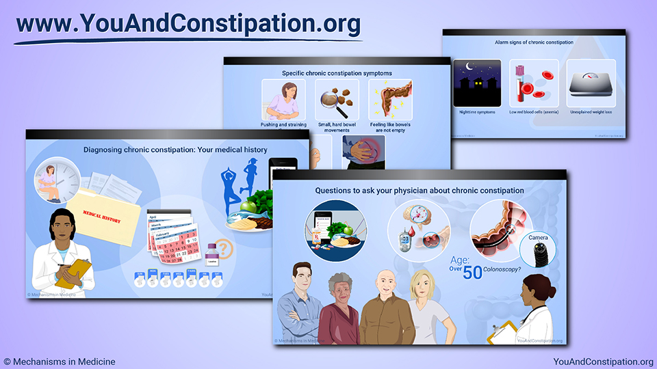 Slide Show - Diagnosing Chronic Constipation