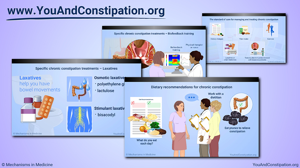 Slide Show - Managing and Treating Chronic Constipation