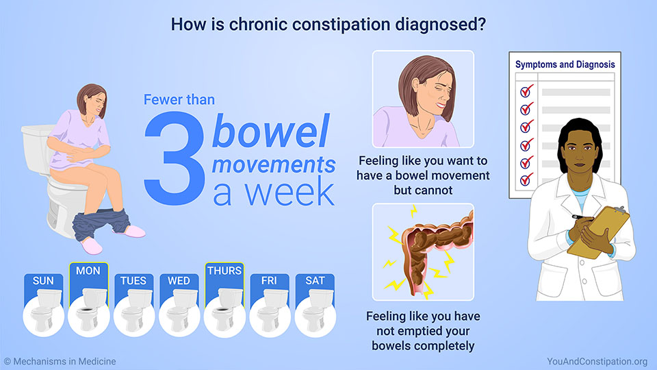 How is chronic constipation diagnosed?