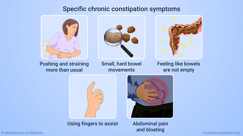 Specific chronic constipation symptoms