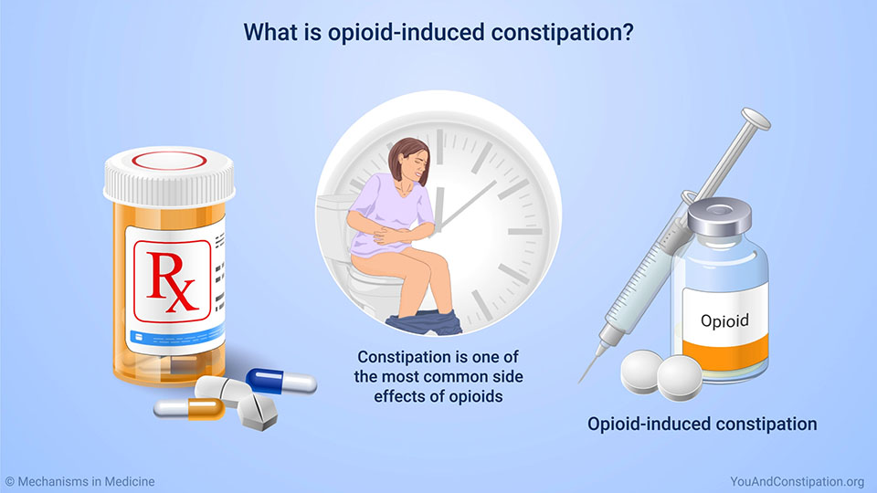 What is opioid-induced constipation?