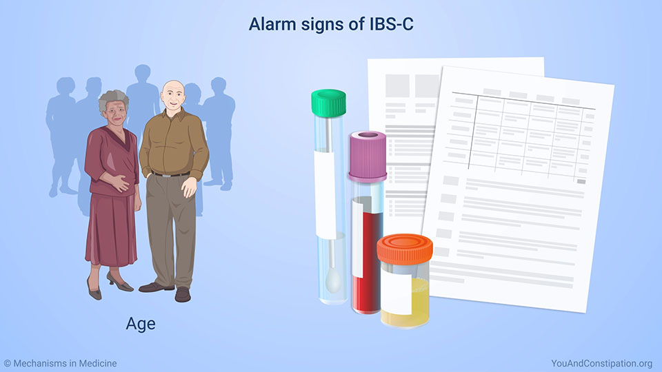 Alarm signs of IBS-C