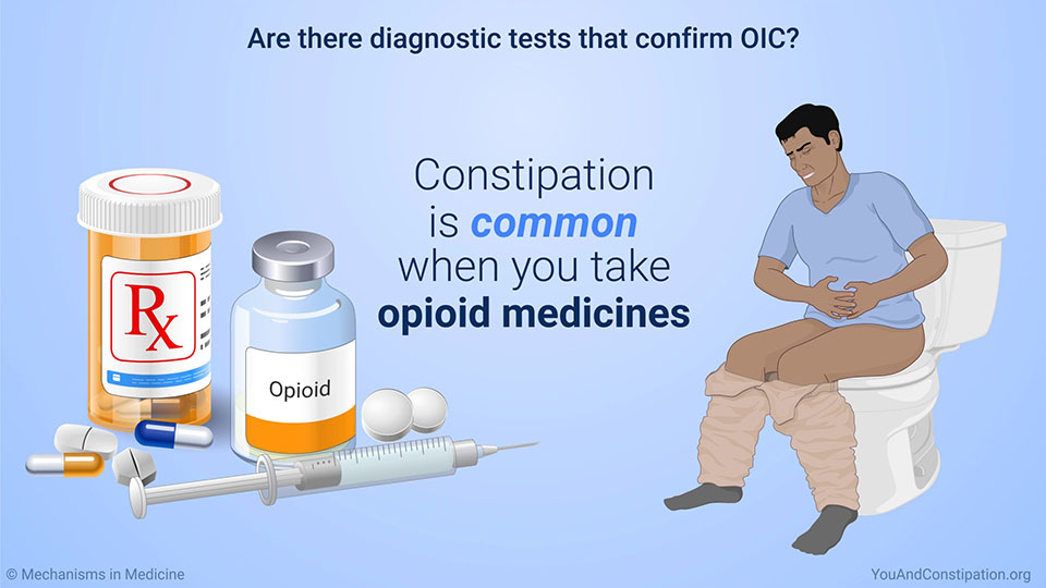 Are there diagnostic tests that confirm OIC?