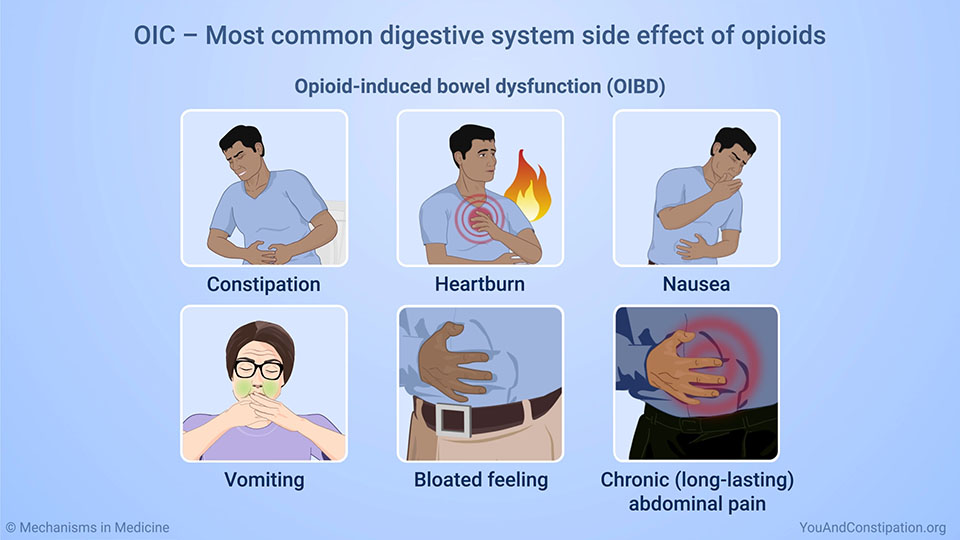 OIC – Most common digestive system side effect of opioids