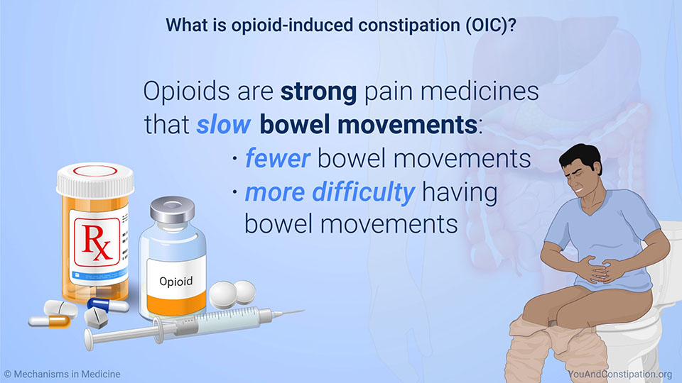 What is opioid-induced constipation (OIC)?