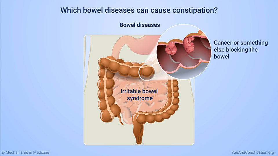 Which bowel diseases can cause constipation?