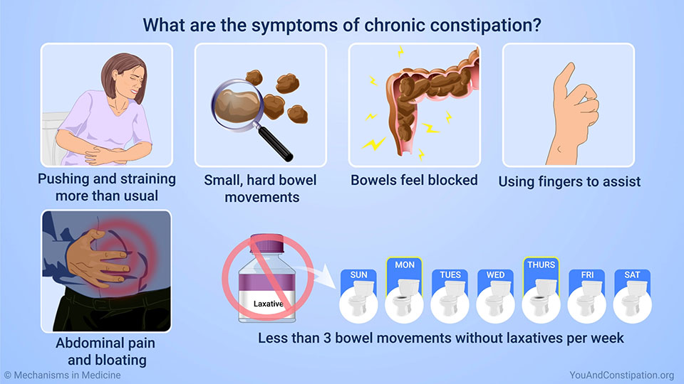What are the symptoms of chronic constipation?