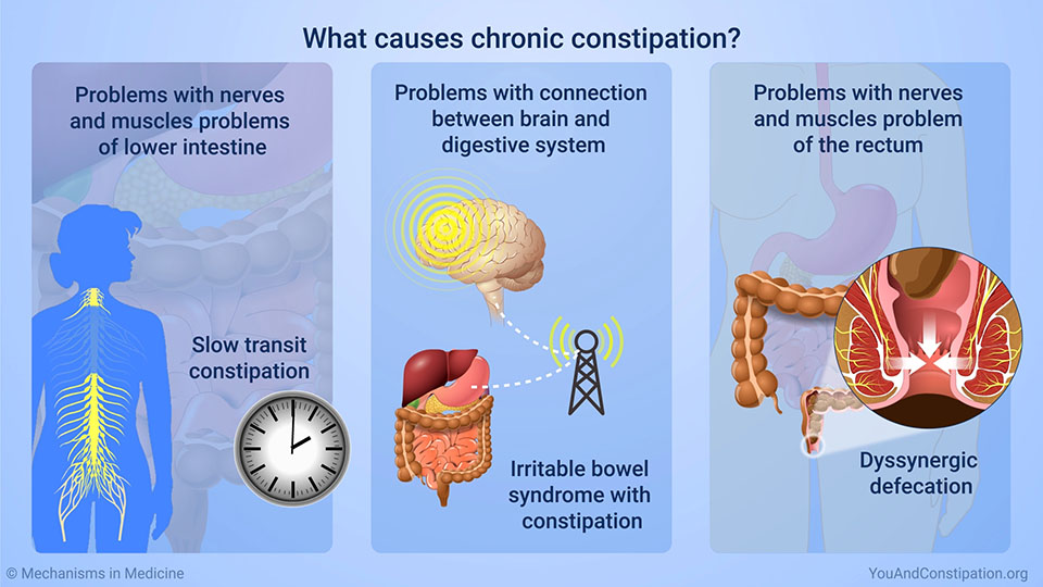 What causes chronic constipation?