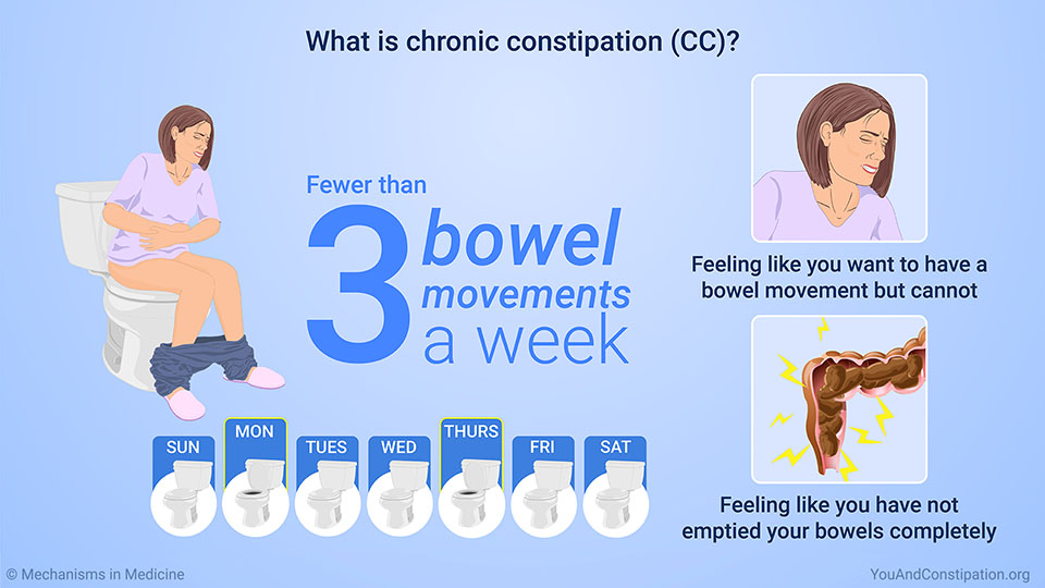 What is chronic constipation (CC)?