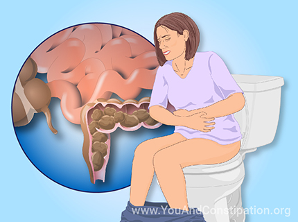 Understanding Chronic Constipation